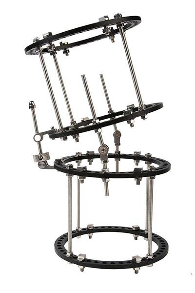 骨科外固定支架系統